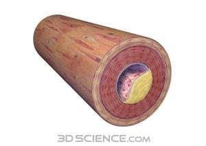 Arterial Plaque